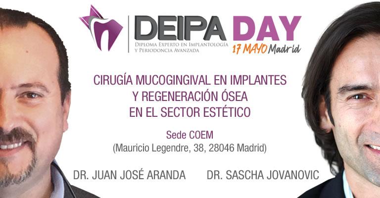Cirugía mucogingival en implantes y regeneración ósea en el sector estético