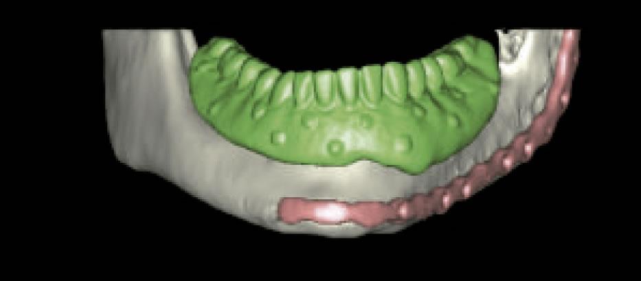 Rehabilitación mandibular