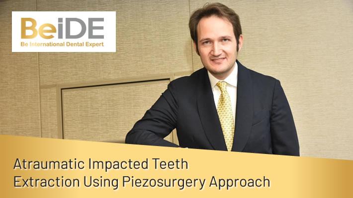 Atraumatic Impacted Teeth Extraction Using Piezosurgery Approach
