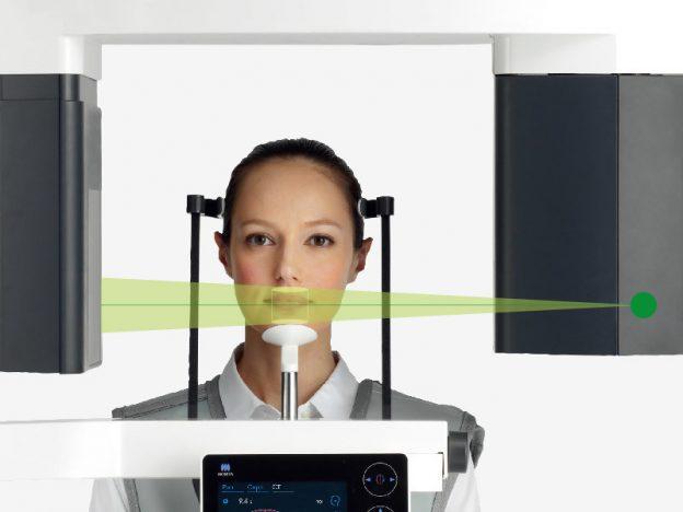Las 10 ventajas de Veraview X800 respecto a otros escáneres