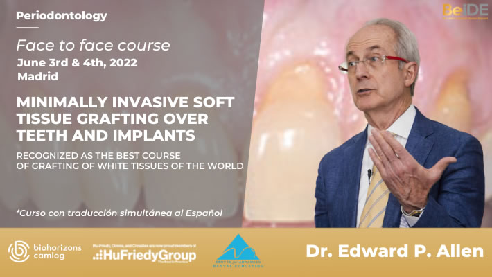 Minimally invasive soft tissue grafting over teeth and implants - Featured image