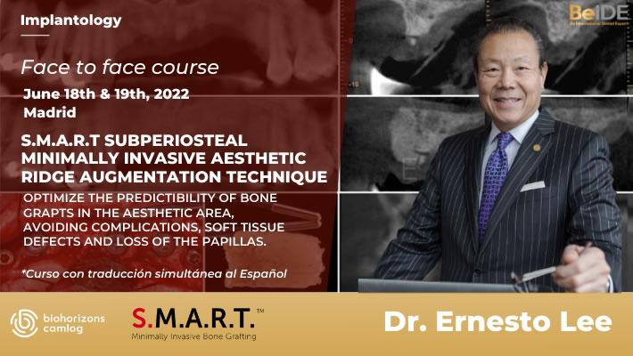 S.M.A.R.T. Subperiosteal Minimally Invasive Aesthetic Ridge AugmentationTechnique - Featured image