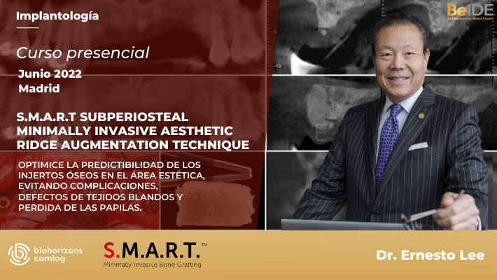 S.M.A.R.T. Subperiosteal Minimally Invasive Aesthetic Ridge AugmentationTechnique